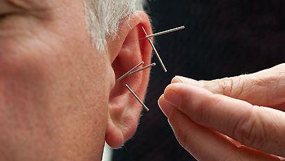 fülpiercing migrén és fogyás esetén